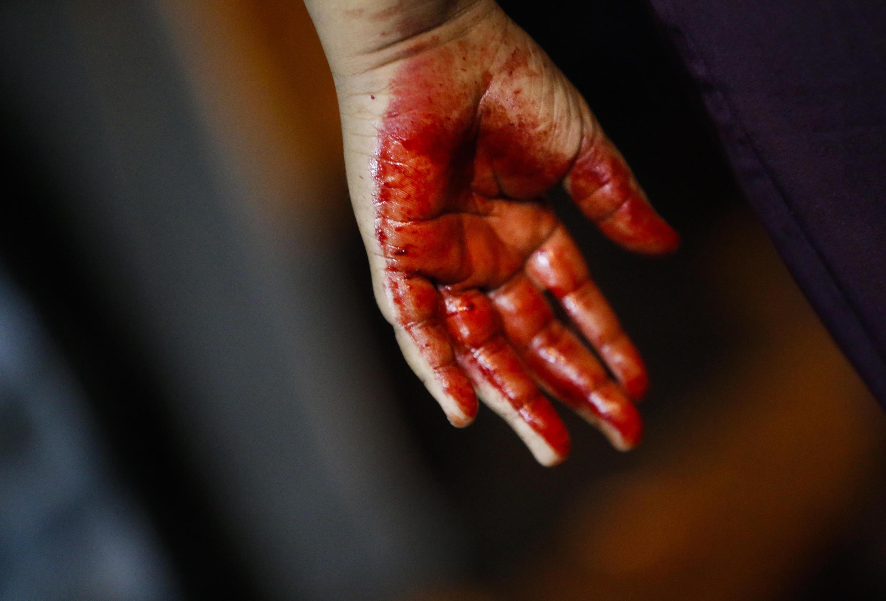 La mano insanguinata di un ragazzo dopo la flagellazione autoinflitta