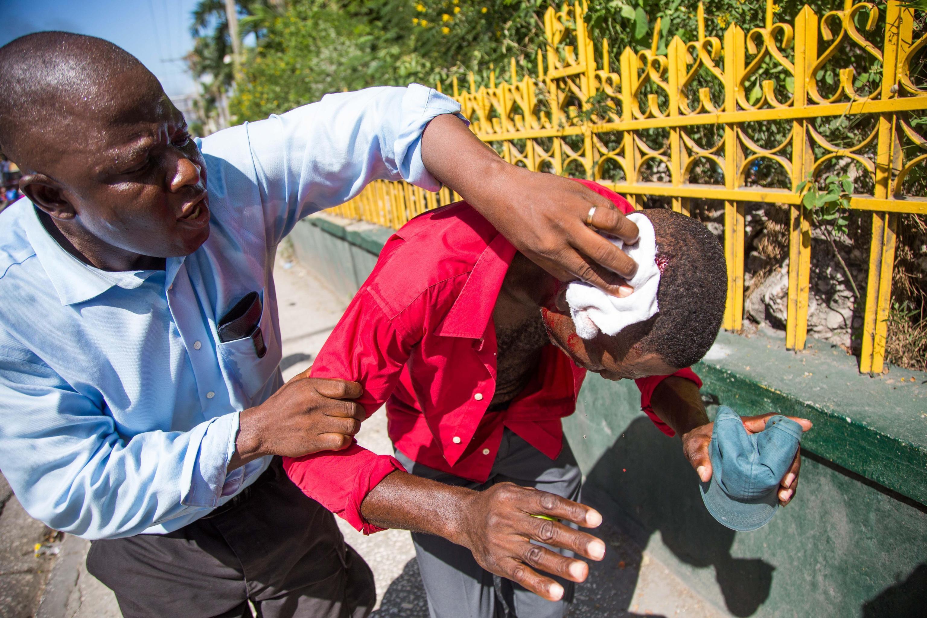 Un manifestate ferito alla testa viene aiutato da un uomo