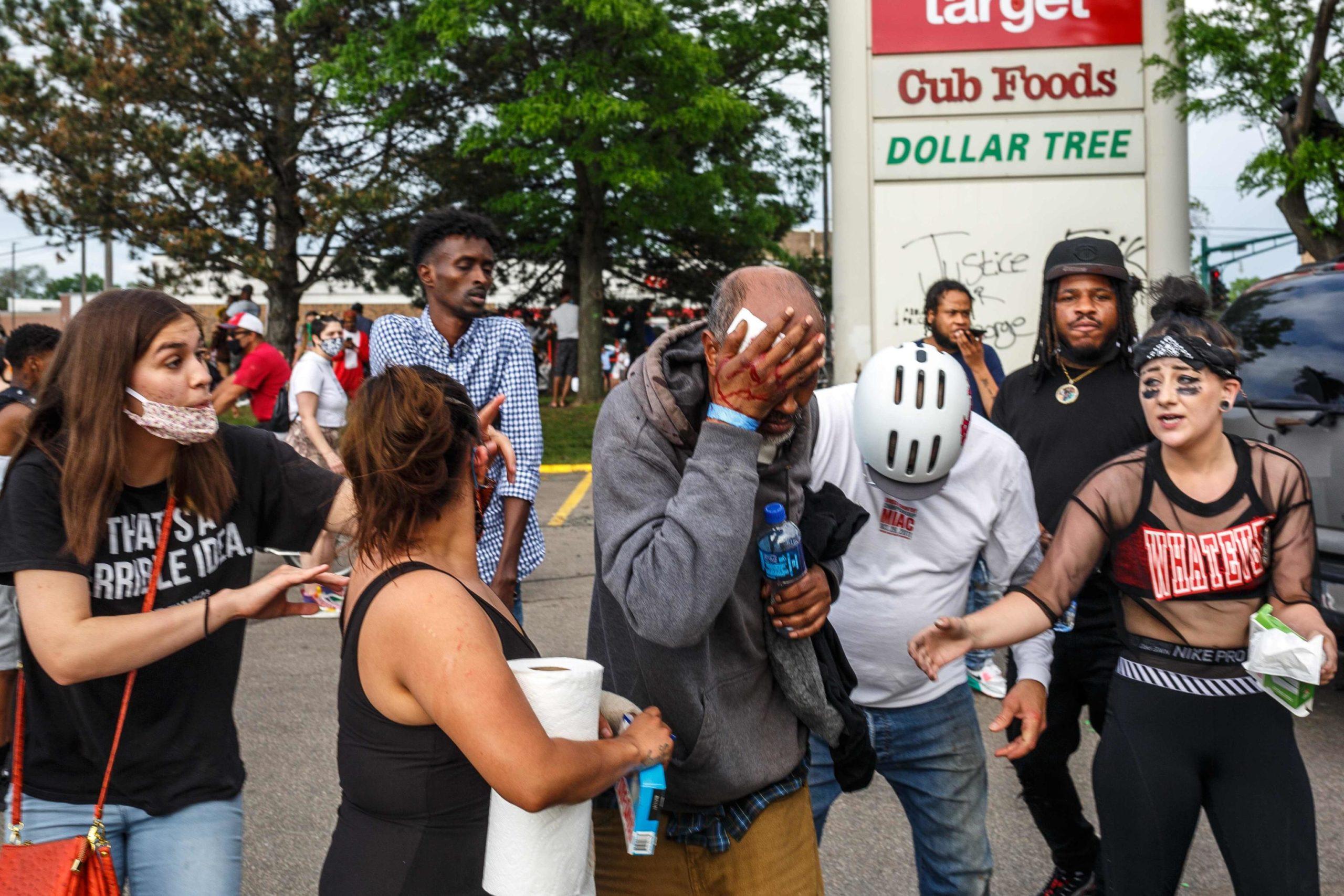 Durante la protesta contro la polizia diverse persone sono rimaste ferite